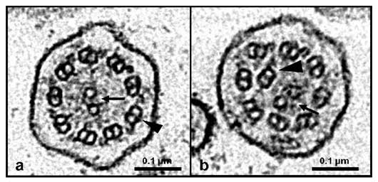 Electron micrographs of transverse sections of canine respiratory cilia